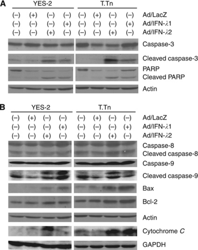 Expressions of apoptosis-linked proteins with Ad/IFN- λ treatments. YES-2 and T.Tn cells were infected with Ad (1000 MOI) and cultured for 72 h. Expressions of caspase-3, PARP, the respective cleaved forms ( A ), caspase-8, caspase-9, the respective cleaved forms, Bax, Bcl-2 and cytochrome C in a cytoplasmic fraction ( B ) were analysed with western blot analyses. Actin and GAPDH expression are shown as a loading control for total, cytoplasmic protein, respectively.