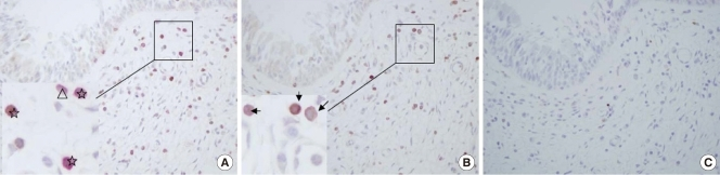 Immunoreactivity and localization of forkhead box P3 <t>(FOXP3)+CD4+</t> cells. Double-staining using labeled streptavidin biotin (LSAB) detection with 3,3'-diaminobenzidine (DAB-brown) for FOXP3 expression and LSAB alkaline phosphatase detection with Fast Red substrate (red) for CD4+ cells was performed as described in the text (A). Symbols used: ☆, FOXP3+/CD4+ cell; △, FOXP3-/CD4+ cell. (B) Double-staining with anti-FOXP3 mAb and <t>IgG1</t> (negative control for CD4). The arrow indicates FOXP3+ cells. Immunoreactivity is evident for only FOXP3+ cells. There is no immunoreactivity for IgG1. (C) The negative control for both FOXP3 and CD4 shows no immunoreactivity for FOXP3 or CD4. Magnification ×400 HPF