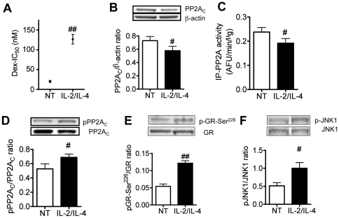 PP2A function in IL-2/IL-4-treated U937 cells. Effects of IL-2/IL-4 co-treatment for 48 h on IC 50 of dexamethasone on TNFα-induced IL-8 release (A), PP2A C protein expression (B), immunoprecipitated PP2A (IP-P2A) activity (C), PP2A C -Tyr 307 phosphorylation(D), GR-Ser 226 phosphorylation (E) and JNK1 phosphorylation (F). Values represent means ± SEM (n = 3–4). # P