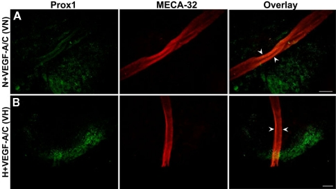 Double immunofluorescence staining of E22.5-day-old EBs in the presence of VEGF-A and VEGF-C . Representative images from three different experiments sets for each marker genes are shown. Arrowheads indicate MECA-32 positive blood vessel-like structures in E22.5-day-old EBs grown under both VN (A) and VH (B) treatments. Prox1 positive LECs are in close proximity to the blood vessel-like structures. Images were taken at 40× magnification (scale bar 30 μm).