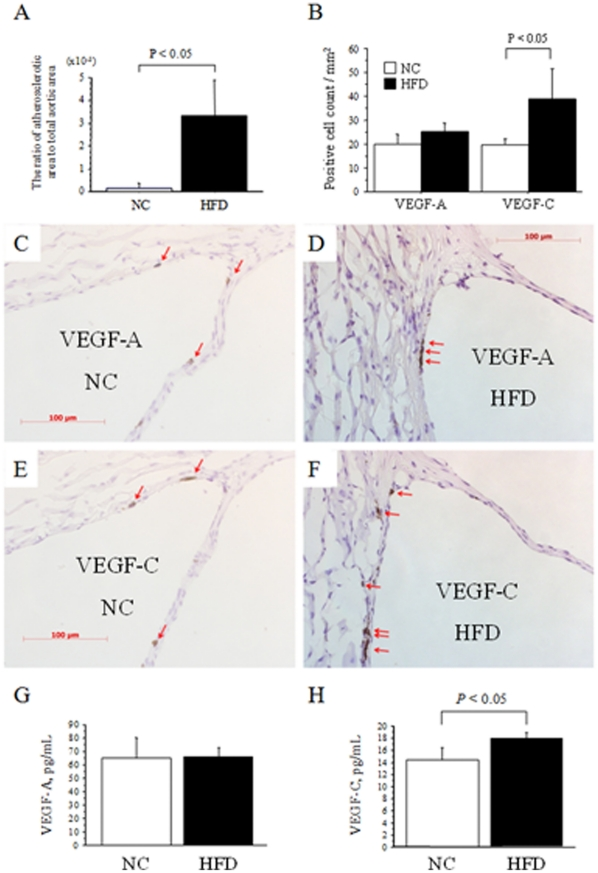 Serum and expression levels in atheromatous plaque of VEGF-A and VEGF-C in apoE-deficient mice. A. Quantification of the lesion size in the proximal aortas of apolipoprotein E (apoE)-deficient mice fed normal chow (NC, n = 3) or a high-fat-diet (HFD, n = 3). The ratio of the atherosclerotic area to the total area was significantly greater in HFD than NC mice. B. Quantification of the expression of vascular endothelial growth factor-A (VEGF-A) and vascular endothelial growth factor-C (VEGF-C) in NC and HFD mice. The expression of VEGF-C, but not VEGF-A, was significantly intensified by feeding HFD compared to NC. C–F. Representative microscopic views (x400) of the expression of VEGF-A in the aortic sinus of apoE-deficient mice fed NC (C) or a HFD (D), and those of VEGF-C in NC (E) or HFD (F) mice. The red arrows indicate VEGF-A- or VEGF-C-positive cells. G and H. Serum levels of VEGF-A (G) and VEGF-C (H) in apoE-deficient mice fed a HFD or NC for 16 weeks. The data are means ± SD.