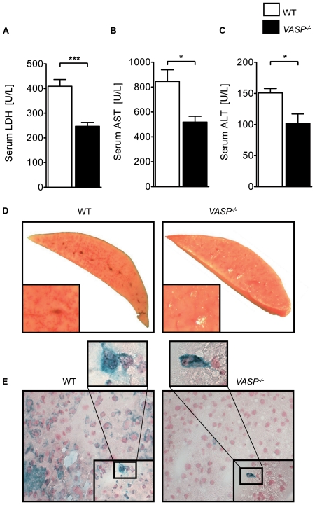 VASP −/− animals demonstrate reduced hepatic IR injury. A ) LDH-serum levels of VASP −/− and WT mice after 30 minutes ischemia and 3 hours reperfusion in U/L. B ) Correlating serum levels of AST and C ) ALT of VASP −/− and WT animals. D ) Representative TTC stained liversections of VASP −/− and WT animals E ) Histological images of platelet-neutrophil complexes (neutrophil = blue; platelet = black) in tissue sections of ischemic tissue of VASP −/− and WT animals (Data are shown as Mean ± SEM, n = 6, * P