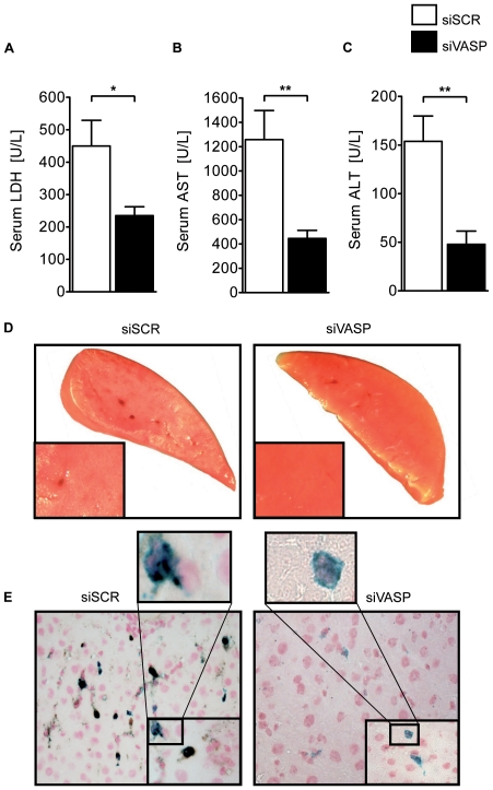In-vivo VASP repression by siRNA dampens hepatic IR injury. A ) <t>LDH-serum</t> levels after hepatic IR in in-vivo targeted repression of VASP with siRNA (siVASP) or non-targeting siRNA (siSCR) B ) Correlating serum levels of AST and C ) <t>ALT</t> of siVASP and siSCR treated WT animals. D ) Representative TTC stained liversections of both groups. E ) Histological images of platelet-neutrophil complexes (neutrophil = blue; platelet = black) in tissue sections of ischemic tissue of siVASP and siSCR treated animals (Data are shown as Mean ± SEM, n = 6, * P
