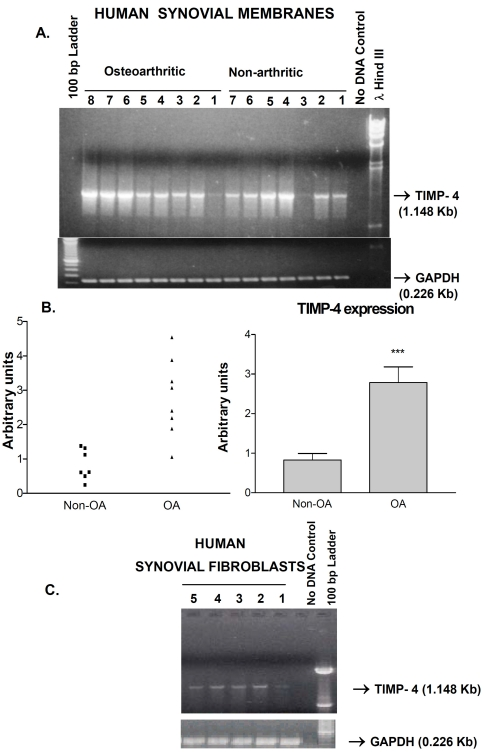 A ) Expression of the TIMP-4 gene in human synovial membranes from non-arthritic and osteoarthritic patients. The specific amplification of TIMP-4 and GAPDH fragments (arrows) along with the lambda Hind III or 100 bp ladder markers is shown. 'No DNA' control lane represents PCR reactions with primers but without cDNA.  B ) Middle panels show two graphic representations of semi-quantitative analysis of TIMP-4 RNA bands. *** p