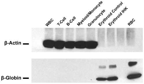 IHK-transduced CD34 + cells show β-globin expression only in erythroid cells. Thirty µg of total protein from IHK-transduced CD34 + cells differentiated into T-cells, B-cells, myeloid/monocytes, and granulocytes and 100 ng of total protein from non-transduced control or IHK-transduced CD34 + cells differentiated into erythrocytes were subjected to western blot using antibodies specific for β-globin and β-actin.