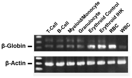 Increased β-globin transcript is detectable in non-erythroid progeny of IHK-transduced CD34 + cells. Twenty ng of total RNA was used for RT-PCR specific for spliced β-globin transcript and spliced β-actin. RNA from adult RBCs and erythrocyte-depleted adult WBCs was used as control.
