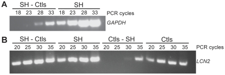 Evaluation of subtraction efficiency. A: Reduction of GAPDH <t>cDNA</t> following subtraction in the SH-Ctls sample. <t>PCR</t> was performed on SH-Ctls subtracted and SH unsubtracted samples. GAPDH PCR products (760 pb) were detectable 10 cycles earlier in the unsubtracted sample (18 cycles) than in the subtracted sample (28 cycles). B: Enrichment of LCN2 cDNA following subtraction in the SH-Ctls sample. PCR was performed on SH-Ctls and Ctls-SH subtracted samples as well as SH and Ctls unsubtracted samples. LCN2 PCR products (210 pb) were detected after 20 cycles for both SH unsubtracted and SH-Ctls subtracted samples, the difference in the intensity of the 2 bands indicate the enrichment compare to Ctls unsubtracted and Ctls-SH subtracted samples.