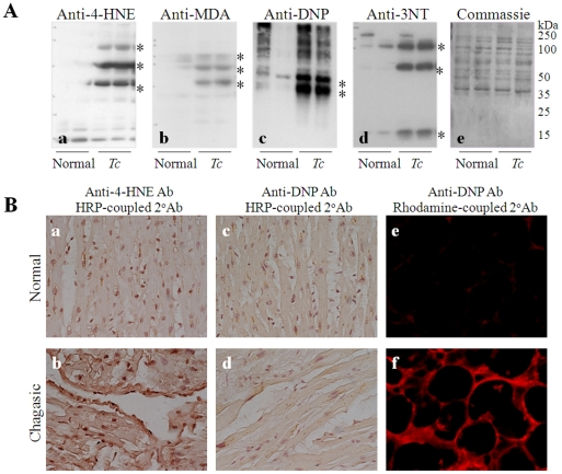 Oxidative adducts are enhanced in experimental and human myocardium during Chagas disease. ( A ) Sprague-Dawley rats (or C3H/HeN mice) were infected with T. cruzi, and cells were harvested at day 40 (acute stage) and 180 (chronic stage) post-infection. Heart homogenates were resolved on 10% acrylamide gels, and Western blotting was performed with specific antibodies to detect 4 hydroxynonenal (4-HNE, panel a ), malondialdehyde (MDA, panel b ), dinitrophenyl (DNP)-derivatized carbonyl ( panel c ), and 3-nitrotyrosine (3NT, panel d ) adducts. Coomassie blue staining of membranes ( panel e ) confirmed the equal loading of samples. ( B ) Cryostat sections of human cardiac biopsies (5-µm) from normal healthy donors ( panels a, c, e ) and chagasic patients ( panels b, d, f ) were submitted to immunohistochemistry as described in Materials and Methods . Shown are representative images of immunostaining with anti-4-HNE antibodies ( panels a, b ). Tissue sections were incubated with DNPH to derivatize carbonyl proteins, and immunostaining was performed with anti-DNP antibody ( panels c–f ). HRP-conjugated ( panels a–d ) and rhodamine-conjugated ( panels e, f ) secondary antibodies were utilized to capture the color (brown) or fluorescence signal, respectively.
