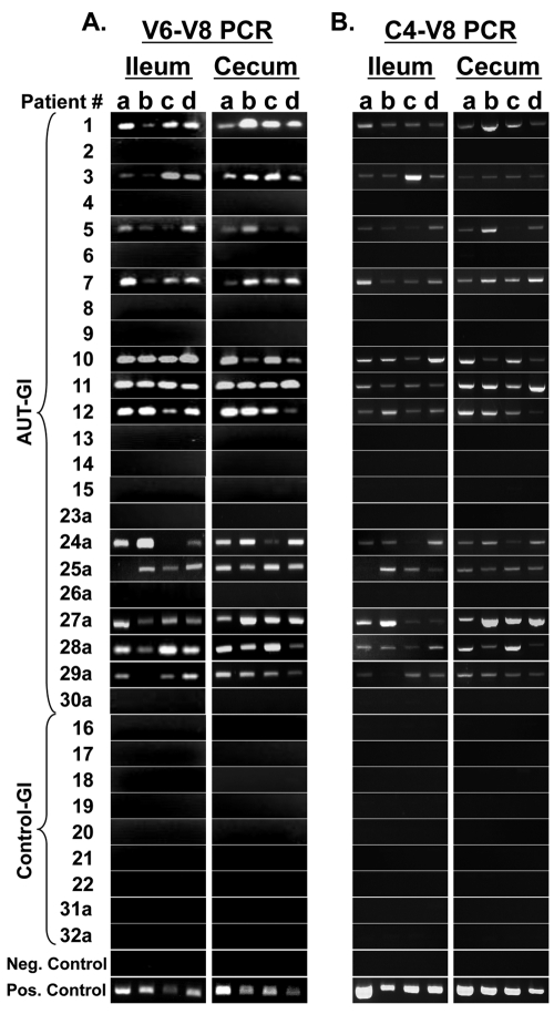 PCR-based detection of Sutterella 16S rRNA gene sequences (V6–V8 region and C4–V8 region) in biopsies from AUT-GI and Control-GI patients. (A) Agarose gel detection of 260-bp Sutterella products in ileal (4 biopsy samples/patient) and cecal (4 biopsy samples/patient) biopsy DNA using SuttFor and SuttRev primers (V6–V8 region) in conventional PCR assays. (B) Agarose gel detection of 715-bp Sutterella products in ileal and cecal biopsy DNA using pan-bacterial primer 515For and SuttRev primer (C4–V8) in conventional PCR assays. The negative control is PCR reagents with water substituted for DNA. The positive control is DNA isolated from cultured S. wadsworthensis (ATCC 51579).