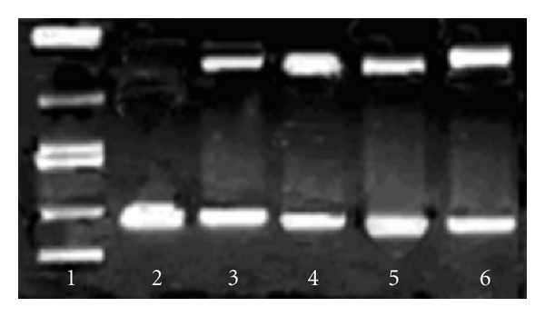 Cleavage of SC pUC19 DNA (50 μ M) by platinum complex (100 μ M) in the presence of H 2 O 2 (100 μ M), in 10 mM <t>Tris-HCl/1</t> mM <t>EDTA</t> buffer (pH 8.0). lane 1: DNA Marker; lane 2: DNA control; lane 3: DNA + complex; lane 4: DNA + complex 1 + H 2 O 2 ; lane 5: DNA + complex + H 2 O 2 + DMSO (4 μ L); lane 6: DNA + complex 1 + H 2 O 2 + NaN 3 (100 μ M).