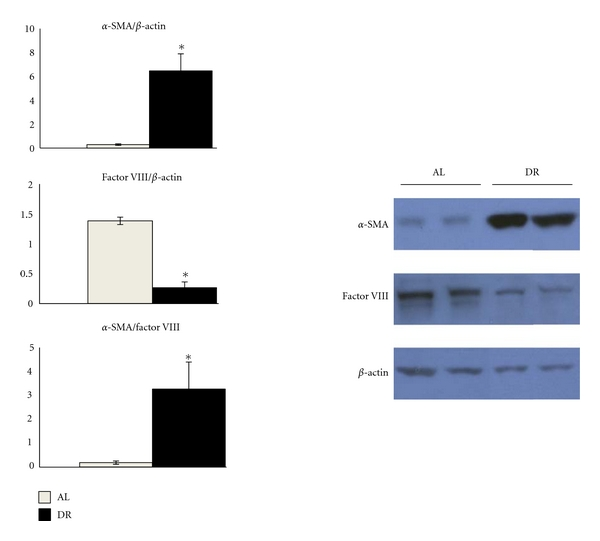 Dietary restriction increases α -SMA and reduces Factor VIII expression in the CT-2A astrocytoma. The histograms show the average relative expression of the indicated protein normalized to β -actin based on Western blot analysis. Equal amounts of protein were loaded into each lane of the Western blot (25 μ g). Other conditions were as described in Section 2 . Values are expressed as normalized means of three to four independent tissue samples per group ± SEM. The value is significantly different in the tumors of DR-fed mice than in the tumors of AL-fed mice: * P