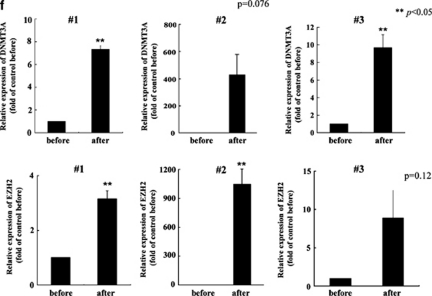 EZH2 interacts with DNMT3A in imatinib-resistant EOL-1 cells. Western blot analysis. ( a ) EOL-1 cells were cultured with imatinib (1 n) for 3 or 4 months. Cells were harvested and subjected to western blot analysis to monitor the levels of tri-methyl-histone H3 (Lys27), histone H3, EZH2 and DNMT3A. Each lane was loaded with 20 μg of nuclear protein lysates. Levels of glyceraldehyde 3-phosphate dehydrogenase (GAPDH) were measured as a loading control. Band intensities were quantified with ImageJ software (Wayne Rasband, NIH). <t>Immunoprecipitation.</t> ( b ) EOL-1 cells were cultured with imatinib (1 n) for 3 or 4 months. Cells were harvested and proteins were extracted. The EZH2 proteins were immunoprecipitated and subjected to western blot analysis. The membrane was probed sequentially with anti-DNMT3A (top) and anti-EZH2 antibodies (bottom). Binding of EZH2 and DNMT3A in PTEN promoter region. Chromatin immunoprecipitation assay. ( c ) Binding of DNMT3A and EZH2 in the PTEN promoter was analyzed by ChIP assay. To quantify acetylated DNA precisely, we employed real-time PCR. The amplified sequences were normalized to those from input (the cross-linked DNA/protein complexes, which were not immunoprecipitated with anti-DNMT3A and -EZH2 antibodies). Results represent the mean±s.d. of two experiments performed in duplicate. The statistical significance was assessed by a paired t -test. * P