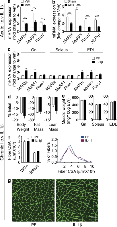 HPA axis activation is necessary for i.c.v. IL-1β–induced muscle catabolism. (a and b) Muscle atrophy gene expression in mifepristone (Mife) or Veh-treated ( n = 6–8/group; a) and ADX or sham ( n = 7–8/group; b) mouse Gn 8 h after acute i.c.v. 10-ng IL-1β injection was measured by real-time PCR. (c–g) ADX rats were treated for 3 d with chronic i.c.v. IL-1β or Veh (10 ng/h, n = 8–9/group). Veh-treated animals were PF to the IL-1β–treated group. (c) Atrophy gene expression in ADX rat muscle after 3-d chronic i.c.v. IL-1β infusion was measured by real-time PCR. Reported values are relative to GAPDH. (d) Body composition. (e) Muscle weight normalized to initial body weight (BW). (f) Mean fiber CSA in WGn and soleus and frequency distribution in WGn. (g) WGn immunostained for laminin (green) delineating fiber area. The dotted lines in a and b represent Veh-treated controls at a relative quantity of 1. Bars, 100 µm. Data are represented as mean ± SEM. *, P