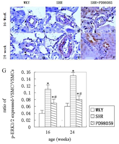Phospho-ERK1/2 immunohistochemistry in VSMCs of interlobar arterioles. A – F , representative ERK1/2 immunohistostaining in VSMCs. ( A ) no expression of phospho-ERK1/2 in WKY at 16 weeks of age group (▴); ( B ) increased expression of phospho-ERK1/2 in SHR at 16 weeks of age group (↑); ( C) reduced expression of phospho-ERK1/2 in PD98059-treated SHR at 16 weeks of age group (↑); ( D) no expression of phospho-ERK1/2 in WKY rats at 24 weeks of age group (▴); ( E) increased expression of phospho-ERK1/2 in SHR at 24 weeks of age group; ( F ) reduced expression of phospho-ERK1/2 VSMC except distal renal tubule (↑) in PD98059-treated SHR at 24 weeks of age group (▴). DAB visualized, slight hematoxylin counterstaining. Magnification, 400×. G , Summary of phospho-ERK1/2 positively stained VSMCs in the small renal arteries. * P