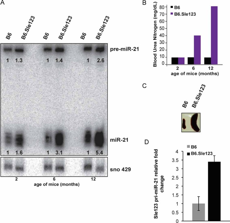 miR-21 expression in B6.Sle123 is regulated transcriptionally and correlates with age and disease severity pre-miR-21 and mature miR-21 expression in B6.Sle123 splenic B cells. Twenty micrograms of total splenic B cell <t>RNA</t> from individual age-matched 2, 6 and 12 months old B6.Sle123 and B6 mice were analysed under denaturing conditions, transferred and hybridized with LNA probe complementary to miR-21. For mass-normalization, the same membrane was stripped and re-probed with mouse snoRNA-429 radiolabelled DNA probe. The data were normalized to snoRNA-429 expression and relative fold-expression values calculated by taking the B6.Sle123/B6 ratio. A shorter exposure of the same membrane was used for the detection of the miR-21. B6.Sle123 disease severity correlates with age: BUN of 2, 6 and 12 months old female B6 and B6.Sle123 mice used as a measure of disease severity. Comparison of spleens extracted from 6 months old B6 and B6.Sle123 mice showing correlation of BUN and splenomegaly. <t>qRT-PCR</t> amplification of primary miR-21 (pri-miR-21) using splenic B cell RNA from individual, age-matched 9 months old B6.Sle123 and B6 mice. The average of three individual experiments is shown. Error bars represent SEM.