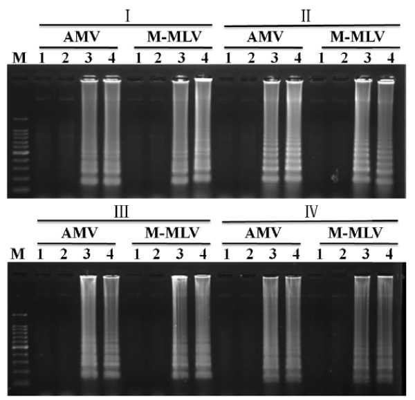 Agarose gel analysis of different RT-LAMP reactions . I-IV were four sets of primers; <t>AMV</t> was AMV-mediated RT-LAMP; <t>M-MLV</t> was M-MLV-mediated RT-LAMP. M: 100-bp DNA ladder marker; 1 and 2: healthy controls; 3 and 4: virus-infected samples