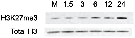 Western blot analysis of cellular H3K27me3 levels during MCMV infection. Whole cell lysates were prepared from mock-infected or MCMV-infected fibroblasts at the indicated times. Blots were probed with antibodies against H3K27me3 or total H3.