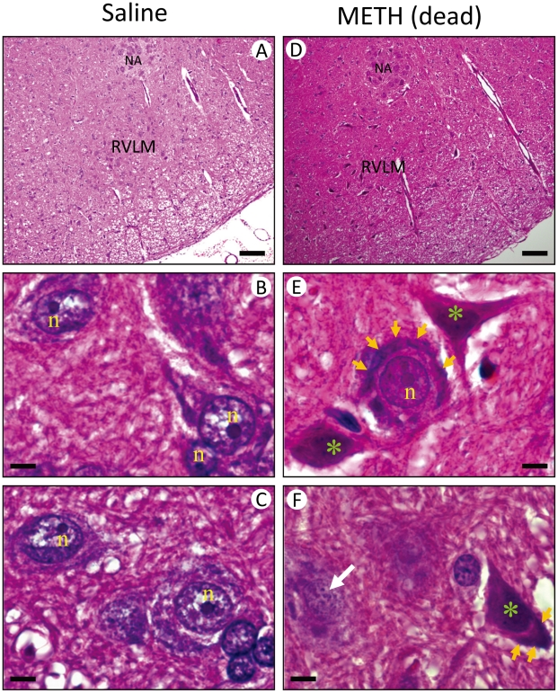 Methamphetamine induced necrotic cell death in <t>RVLM.</t> Representative photomicrographs of tissues stained by hematoxylin and eosin (H E) showing nuclear pyknosis and chromatolysis in RVLM neurons of rats that received saline (A–C) or died of <t>METH</t> (48 mg/kg, i.v.) (D–F). These results are typical of 4–5 animals from each experimental group. Scale bar, 5 µm. NA, nucleus ambiguus; n, nucleus; yellow arrow, chromatolysis in RVLM neuron; white arrow, karyorrhexis in RVLM neurons; green symbol (*), karyolysis in RVLM neuron.