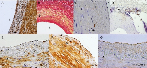 Histological and immunohistochemical characteristics of the IEA. The intima thickening is composed of SMA-positive cells (magnification ×200) ( A ) and collagen fibers positive for Sirius Red (magnification ×100) ( B ). Macrophages only are detectable as isolated cells in the intima (magnification ×400) ( C ) or forming aggregates around medial calcifications (magnification ×100) ( D ). Abundant localization of <t>MCP-1–positive</t> cells ( E ), as well as IL-6–positive cells ( F ), is present in both the intima and muscular layers. Strong VCAM-1 expression is observed in the endothelial layer ( G ) of the artery wall (magnification ×400). Note that endothelial and SMCs, as well as SMA-positive cells in the neointima, are positive for the three molecules. A and B represent contiguous sections of the same artery; note the fibrous cap formed by SMA-positive cells and collagen. Arrow, internal elastic lamina; L, lumen. (A high-quality digital representation of this figure is available in the online issue.)