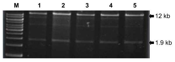 The destination vector pEG101-SacB/R can be stably propagated in the E. coli strain DH5α . Restriction digestion ( Bst XI and Bbv CI) of plasmid DNAs, isolated from five repeated overnight cultures of E. coli carrying the pEG101-SacB/R destination vector, showed identical restriction patterns. M: 1 kb marker. Lanes 1 through 5 were digested plasmid DNAs of five repeated subcultures.