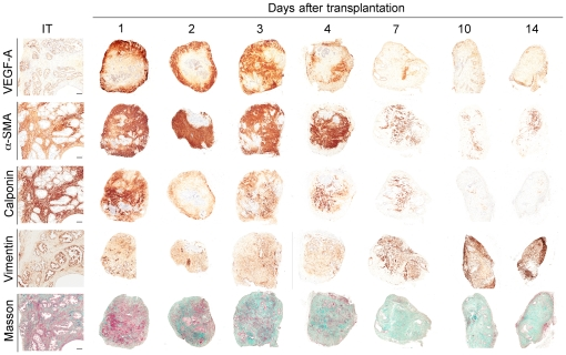Induction of a reactive stroma in primary xenografts of human prostate tissue. Temporal changes of protein levels of VEGF, αSMA, Calponin and Vimentin were measured by IHC-staining, and of the presence of smooth muscle cells and collagen fibers was visualized by Masson's trichrome staining, over the 14 days following xenograft transplantation. α-SMA and Calponin are early and late markers of smooth muscle, respectively. Masson's trichrome identifies smooth muscle cells (purple) and collagen fibers (green).