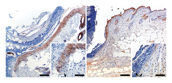 Cadherin staining 48 h postincisional wounding in vivo . Left Panel: E-cadherin immunoreactivity at wound margin 48 h after introduction of an incisional wound. Bar = 150 μ m. Inset: Higher magnification of the advancing edge of epithelium. Note that E-cadherin immunoreactivity is present in all but a few cells at the very tip of the migrating epithelium. Bar = 50 μ m. Right Panel: Desmoglein immunoreactivity at wound margin 48 h after introduction of an incisional wound. Bar = 150 μ m. Inset: Higher magnification of the advancing edge of epithelium. Note that desmoglein immunoreactivity is largely absent from the tip of the migrating epithelium. Bar = 50 μ m.
