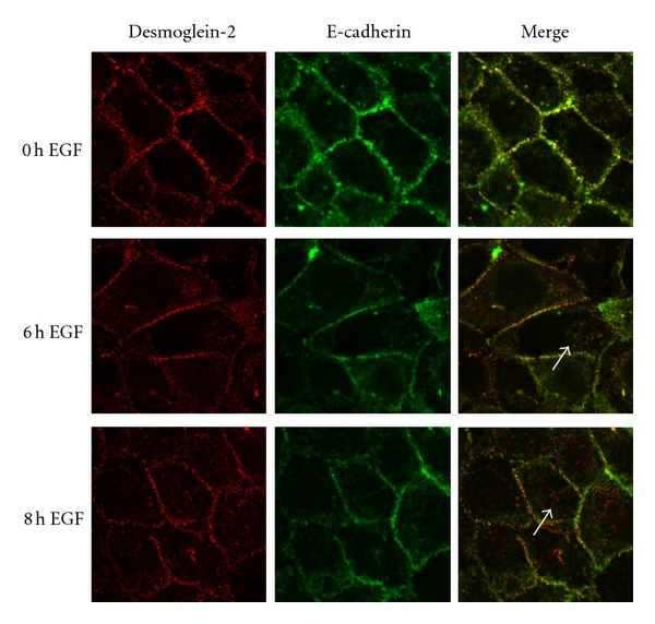 Desmoglein-2 does not internalize with E-cadherin. SCC 12F cells were treated with EGF for the indicated times, fixed, then probed with E-cadherin or desmoglein-2 antibodies. The desmosomal cadherin desmoglein-2 is relocalized from the cell borders at 6–8 hrs after EGF treatment. Note punctate cytoplasmic staining (white arrows). This pattern differs from that observed for the adherens junctional cadherin, E-cadherin, where strong border staining is evident at 6 hours post EGF treatment.