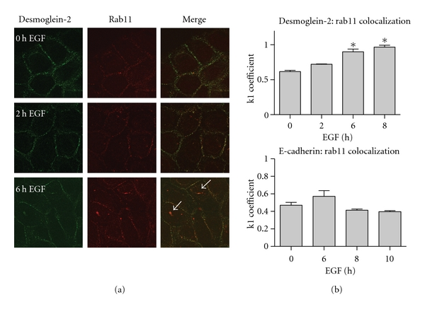 Desmoglein-2 colocalizes with Rab11, a recycling marker. (a) SCC 12F cells were treated for the indicated times with 20 nM EGF, then fixed with 3.7% formaldehyde and permeabilized with 0.1% Triton X-100. Cells were stained with antibodies against both desmoglein-2 and rab11. Secondary antibodies tagged with either FITC or Rhodamine were used. Colocalization is detected by the appearance of yellow staining where the red and green overlap, particularly in EGF-treated cells (white arrows). (b) Mandler's overlap coefficient, k1, measures the ratio of cadherin colocalized with Rab11 to total cadherin present.