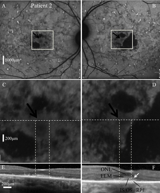 Images of patient 2. Fundus autofluorescence <t>(FAF)</t> images C and D correspond with the white square regions in images A and B , respectively. The horizontal white dashed lines represent the position of the spectral domain-optical coherence tomography <t>(SD-OCT)</t> images E and F on the corresponding en face image. FAF revealed widespread retinal disease. Relative foveal sparing was present bilaterally as evidenced by a uniform autofluorescence pattern at the foveae (black arrows). The corresponding SD-OCT images revealed relative preservation of the inner segment–outer segment junctions of the photoreceptors (IS/OS), external limiting membrane (ELM), and outer nuclear layer (ONL) in this region. The horizontal borders of the regions with preserved IS/OS are indicated by the vertical white dashed lines on the corresponding FAF and SD-OCT images. Outside these regions, absence of IS/OS was associated with functionally preserved retinal pigment epithelium (RPE), at least as identified by FAF ( C , D ). Qualitatively normal thickness RPE was also observed in regions with loss of IS/OS ( F , white arrow).Corresponding size bars for A and B , C and D , and E and F are included in A , C and E , respectively