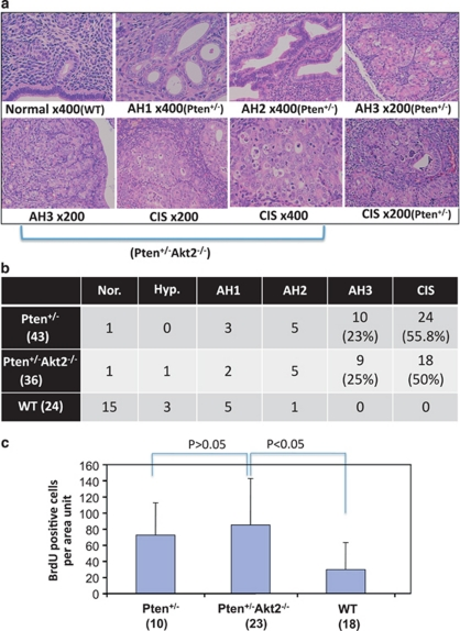 Akt2 deficiency is insufficient to inhibit the development of endometrial carcinoma in <t>Pten</t> +/– mice. ( a ) Histological sections representing the different grades of endometrial neopplasia in Pten +−/− mice (AH, atypical hyperplasia, CIS, carcinoma in situ ). The source of the tissue sections is indicated. ( b ) Incidence of endometrial neoplasia in Pten +/– , Pten +/– Akt2 –/– and wild-type mice. Total number of mice examined in each group is indicated in parentheses. ( c ) <t>BrdU</t> incorporation in the uteri of Pten +/– , Pten +/– Akt2 –/– and wild-type mice. The numbers of mice in each group are indicated in parentheses. P -values are indicated.