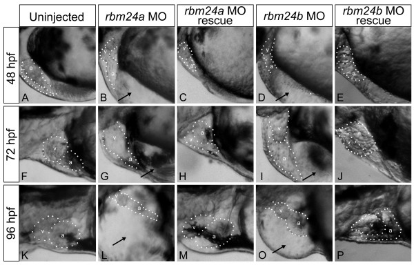 rbm24a and rbm24b are required for normal cardiac development . Translation blocking morpholinos complementary to rbm24a (5 ng) or rbm24b (8 ng) were injected into 1-2 cell stage zebrafish embryos and the resulting phenotypes were evaluated compared to uninjected controls at 48 hpf (A, B, D), 72 hpf (F,G,I), and 96 hpf (K, L, O). Lateral heart views are shown with a dotted outline around the heart chambers. Both morphant embryo conditions exhibited cardiac looping defects and edema at all stages. Heart chambers are shown with a dotted outline with chambers denoted: v, ventricle; a, atrium; black arrows, cardiac edema. Phenotype rescue was achieved for each rbm24 via co-injection of each respective full length capped poly-A RNA transcript ( rbm24a 800 pg, rbm24b 50 pg) along with the respective complementary translation blocking morpholino into 1-2 cell stage embryos where 800 pg rbm24a (C, H, M) or 50 pg rbm24b (E, J, P) achieved rescue. Rescued embryos posses looped hearts absent of edema.