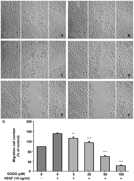QODG inhibits VEGF–induced chemotactic motility of endothelial cells. QODG inhibited the migration of HUVECs. HUVECs were allowed to grow to full confluence in 6-well plates pre-coated with 0.1% gelatin and then starved with ECGM containing 0.5% <t>FBS</t> to inactivate cell proliferation. After that, cells were wounded with pipette and washed with <t>PBS,</t> then treated with or without VEGF (10 ng/mL) and DMSO (0.1%) or different concentrations of QODG (5, 20, 60, 180 µM) in ECGM containing 0.5% FBS. Images were taken using an inverted microscope (Olympus, Center Valley, PA, USA) (at 100×magnification) after 8 h of incubation, and migrated cells were quantified by manual counting. (A) Migration assay of HUVECs treated with only DMSO (0.1%). (B) Migration assay of HUVECs treated with VEGF (10 ng/mL) and DMSO (0.1%). (C–F) Migration assay of HUVECs treated with VEGF (10 ng/mL) and various concentrations of QODG (5, 20, 60, 180 µM). (G) Quantitative comparison of the numbers of migrated cells in different groups. Cells receiving only DMSO (0.1%) served as a vehicle control. Data are expressed as percentages of the vehicle control (100%) in mean ± SD from three independent experiments. **, P