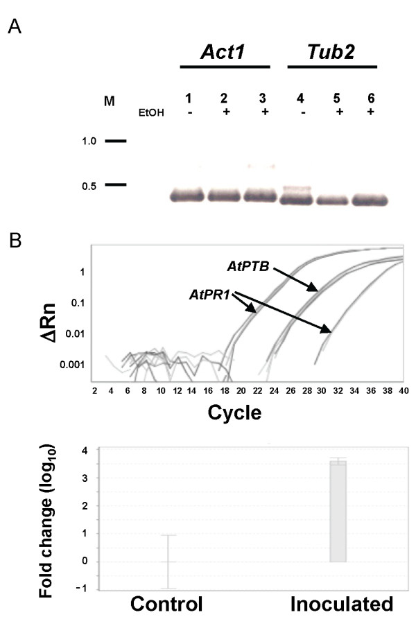 RT-PCR and quantitative RT-PCR analysis . A : PCR analysis of <t>cDNA</t> transcribed from RNA extracted by the different columns. RT-PCR, Lanes 1 and 4, cDNA template was transcribed from RNA extracted using the common RNA extraction protocol [ 4 ] without column extraction step. Lanes 2 and 5, cDNA template was transcribed from RNA produced using the plasmid <t>DNA</t> extraction column. Lanes 3 and 6, cDNA template was transcribed from RNA produced using the RNA collection column (RNeasy Plant Mini Kit). EtOH, 96% ethanol added to samples before transfer through columns. Actin 1 ( Act1 , lanes 1-3) and β-Tubulin 2 ( Tub2 , lanes 4-6) primers were used. M, DNA 1-kb ladder. B : Quantitative real-time RT-PCR on cDNA transcribed from RNA produced using LogSpin protocol, amplification plot (upper panel) and fold change of AtPR1 gene normalized to AtPTB1F on samples from inoculated versus uninoculated (control) Arabidopsis leaves. Relative AtPR1 gene expression was calculated by the 2 -ΔΔCt method (ΔRn).