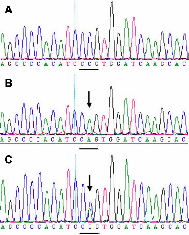 DNA sequence of a part of FGF2 in the affected patients and unaffected individuals. A : A mutation c.866A > C (Gln289Pro) in exon 8 in the affected individuals. B : Sequence of the normal allele of exon 8 subcloned into the <t>pGEM-T</t> vector used as a control. C : A heterozygous missense mutation c.866A > C (Gln289Pro) in exon 8 in the affected individuals. The mutation causes the glutarnine 289 codon (CAG) to change to a proline codon (CCG).