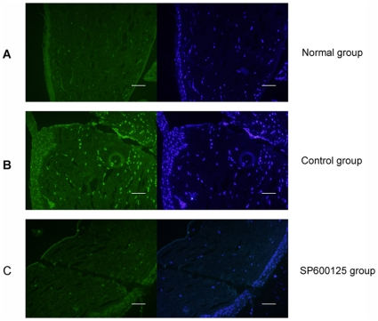 Evaluation of inhibitory effect of SP600125 on penetrating corneal wound induced JNK phosphorylation in Wistar rats. (A) p-JNK was examined by immunofluorescence analysis. Five micrometer corneal sections were stained with antibodies to p-JNK (green) as well as with nuclear staining dye (blue). There was little expression of P-JNK in the normal mice cornea of normal rats. (B) Penetrating injury was made in the central cornea of Wistar rats, control group received daily subconjunctival injection of physiological saline. Positive p-JNK staining was markedly increased in the corneal stroma at 1 d after injury. (C) Subconjunctival injection of SP600125 notably inhibited JNK activation in the corneal stroma at 1 d after injury. n = 4 rat in each group, Bars: 40 µm.