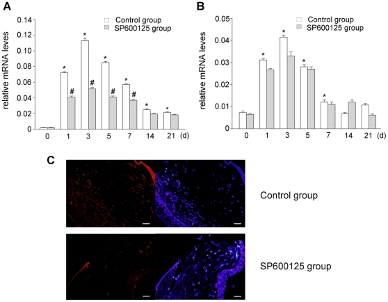 Evaluation of inhibitory effect of SP600125 on penetrating corneal wound induced CTGF expression in Wistar rats. (A) Real time PCR was used to measure CTGF mRNA expression. The expression of CTGF mRNA was upregulated significantly in wounded corneas and reached a peak at 3 d after injury, subconjunctival injection of SP600125 significantly inhibited injury-induced CTGF mRNA expression. (B) Real time PCR was used to measure TGF-β1 mRNA expression. Subconjunctival injection of SP600125 did not influence the expression of TGF-β1. Data are representative of three independent experiments. *, P
