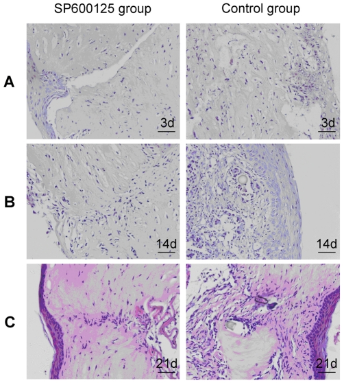 Evaluation of inhibitory effect of <t>SP600125</t> on penetrating corneal wound induced corneal scarring in Wistar rats. A penetrating corneal wound model was created with Wistar rats and inhibition of JNK activation by subconjunctival injection of SP600125 daily post-wounding. (A) HE stained histological sections showed that corneal epithelial healing was almost complete at 3 d in both groups. Subconjunctival injection of SP600125 after injury daily markedly improved the architecture of cornea and reduced scarring and did not have a significant impact on wound stroma healing at 14 d (B), 21 d (C). n = 4 rat in each group, Bars: 40 µm.