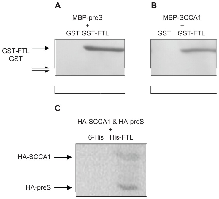 ( A ) Western blot of preS-pulldowned proteins; ( B ) Western blot of SCCA1-pulldowned proteins; ( C ) Western blot of FTL-pulldowned proteins. For A, MBP-preS was pre-incubated with either GST-FTL or GST before mixing with amylose beads; for B, MBP-SCCA1 was pre-incubated with either GST-FTL or GST before mixing with amylose beads; for C, HA-tagged preS and SCCA1 were coexpressed with His-tagged FTL protein in HepG2 cells before immunoprecipitation by anti-His-tag antibody. Abbreviations: MBP, maltose binding protein; GST, glutathione-S-transferase; FTL, ferritin light chain; SCCA1, squamous cell carcinoma antigen 1.