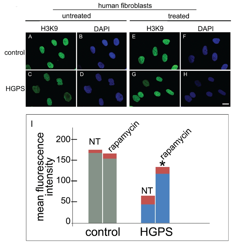 Rapamycin treatment rescues the heterochromatin marker trimethyl-H3K9 in HGPS cells. Immunofluorescence labeling of trimethyl-H3K9 (H3K9) in control and HGPS cells untreated (untreated) or treated (treated) with rapamycin using a rabbit-polyclonal antibody visualized by FITC-conjugated secondary antibody (green). In control untreated cells (A) a proper trimethyl-H3K9 staining was observed, while a clearly detectable decrease of immunolabeling was observed in untreated HGPS cells (C). Rapamycin treatment of control cells did not affect trimethyl-H3K9 staining (E), while rescued trimethyl-H3K9 distribution in HGPS cells (G). Nuclei in B, D, F and H were counterstained with DAPI. Scale bar = 10 µm; I) The mean fluorescence intensity of 300 nuclei per sample stained for trimethyl-H3K9 was measured by the NIS software and plotted for untreated (NT) or rapamycin-treated (treated) control and HGPS nuclei. Asterisk indicates statistically significant difference, P=0.0331 for HGPS + rapamycin vs untreated HGPS.