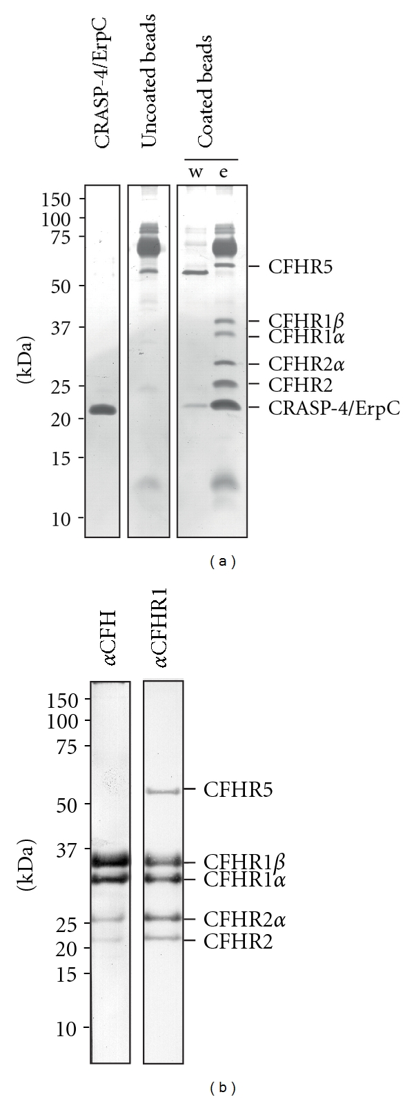 Identification of serum proteins that bind to recombinant CRASP-4. Recombinant, polyhistidine-tagged CRASP-4 was immobilized onto magnetic beads and incubated with NHS. Uncoated beads were also treated under the same conditions and used as a control to identify nonspecific binding of serum proteins. After extensive washing, bound proteins were eluted with 100mM glycine-HCl (pH 2.0) and the eluate fractions were separated by SDS-PAGE under nonreducing conditions. (a) Silver stain of a gel loaded with purified polyhistidine-tagged CRASP-4 (1 μ g), eluate fraction of the uncoated beads, and the final wash and eluate fraction of CRASP-4-coated beads. (b) Western blot analysis of the eluate fraction of CRASP-4-coated beads using a polyclonal anti-CFH or a polyclonal anti-CFHR1 antiserum. Mobilities of molecular mass standards are indicated to the left.