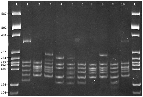 Polyacrylamide gel showing 16S rDNA-RFLP patterns ( Alu I and Mbo I). L: pBR322 DNA/ BsuRI marker (Fermentas, USA), Lane 1: typical pattern of A. hydrophila (JN 686656), Lane 2: typical pattern of A. caviae (JN 686668), Lane 3: atypical pattern of A. trota (JN 686649), Lanes 4–6: atypical pattern of A. veronii (JN 686665, JN 686691, JN 686739), Lanes 7–10: A. aquariorum (JN 686662, JN 686731, JN 686725, JN 686700).