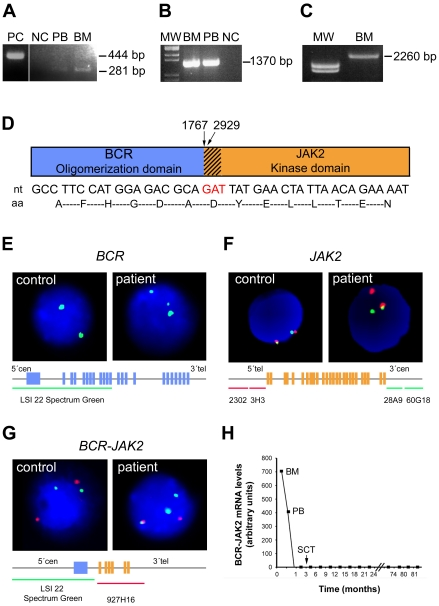 Cloning and identification of BCR-JAK2 fusion gene. ( a ) Nested RT-PCR analysis with standard primers for p190 BCR-ABL amplification (BCR-B and ABL3) on the ALL patient's samples at diagnosis (PB, peripheral blood; BM, bone marrow) showing an unexpected PCR product of 281 bp. PC: positive control (BCR-ABL + p190); NC, healthy negative control. ( b ) Verification of the BCR-JAK2 fusion gene by RT-PCR analysis using primers for BCR (BCR-B) and for the region flanking the stop codon of JAK2 (JAK2-Rv-T). NC, BCR-ABL + p210; MW, molecular weight marker. The 1,370-bp product contains part of BCR exon 1 fused to exon 19 of JAK2 tyrosine-kinase. ( c ) Full-length BCR-JAK2 cDNA amplification. RT-PCR with primers extending the start codon of BCR and the stop codon of JAK2 . ( d ) Schematic diagram of the putative BCR-JAK2 fusion protein (strips represent the fragment of the JAK2 domain JH2). Nucleotide (nt) and amino acid (aa) sequences below showed the BCR-JAK2 breakpoint region (red lettering represents the common BCR and JAK2 triplet). Numbers indicate the nucleotide breakpoint position: 1767 for the BCR gene (NM_004327) and 2929 for JAK2 (NM_004972). ( e ) Interphase nuclei of bone marrow cells at diagnosis after FISH analysis with a probe extending the 5′ region of BCR , showing three green signals indicating a translocation affecting one BCR allele. Schematic BCR gene structure and probe localization are represented below the nuclei. ( f ) FISH analysis with BAC probes flanking JAK2 . Co-localized green and red signals correspond to the normal JAK2 copy. Rearranged JAK2 allele is detected in the patient's nucleus as single green and red signals. ( g ) FISH analysis for BCR-JAK2 translocation. Two BCR (green) and two JAK2 (red) signals were observed in the control, whereas three BCR signals were detected in the patient, one of them fused with one red signal, revealing fusion between BCR and JAK2 . ( h ) BCR-JAK2 qPCR. Specific FRET-hybridization probes were used. Arbitr