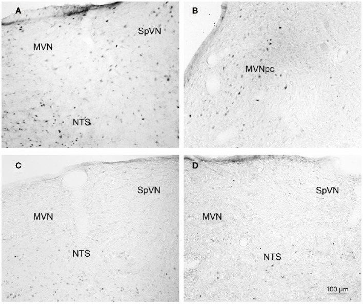 Representative vibratome sections through the vestibular nuclei from two sGVS-stimulated (A,B) and two mock (non)stimulated (C,D) rats processed for immunoperoxidase/diaminobenzidine staining of c-Fos protein . c-Fos-immunoreactive neuronal nuclei are apparent in the spinal and medial vestibular nuclei (SpVN, MVN), as well as nucleus tractus solitarius (NTS), of the stimulated animals. Sections from the mock-stimulated animals contained c-Fos-labeled cells in NTS, but rarely in the vestibular nuclei. Scale bar in (D) is for all panels.