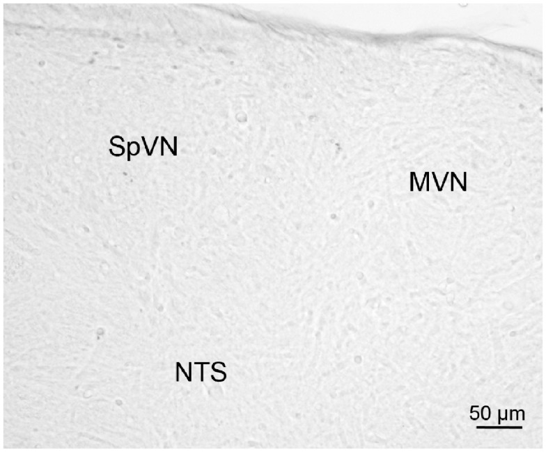 A vibratome section through the caudal vestibular nuclei from an sGVS-stimulated rat, stained with anti-c-Fos antibody pre-incubated with a peptide blocker and then further processed for immunoperoxidase/diaminobenzidine staining . Signal was negligible in such control sections, and in those in which primary and/or secondary reagents were omitted from the processing protocol.