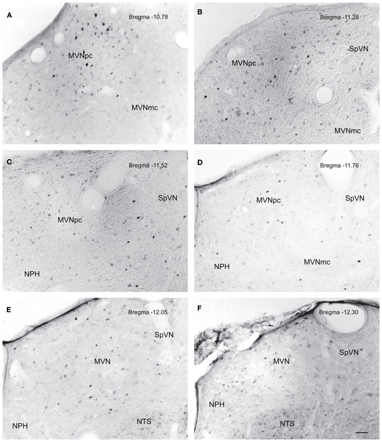 Neurons in MVN activated by sGVS, visualized in vibratome sections processed for c-Fos immunoperoxidase/diaminobenzidine staining . The panels illustrate six rostro-caudal levels of the MVN from the same sGVS-stimulated rat. The images were obtained using the same microscopy and imaging conditions, and were subject to the same adjustments of brightness and contrast (see Materials and Methods ). In all panels, the midline is to the left. A dense cluster of immunopositive cells is present in the rostral pole of MVNpc (A,B) . The few activated neurons in MVNmc (A–D) are small diameter cells; none of the larger diameter neurons of this region were c-Fos-positive. c-Fos-stained cells were scattered throughout the caudal spinal vestibular nucleus (B–F) . Approximate Bregma levels are indicated in the upper right of each panel. Abbreviations: MVN, medial vestibular nucleus; MVNmc, medial vestibular nucleus, magnocellular division; MVNpc, medial vestibular nucleus, parvocellular division; NTS, nucleus tractus solitarius; SpVN, spinal vestibular nucleus. Scale bar in (F) represents 100 μm, and is for all panels.