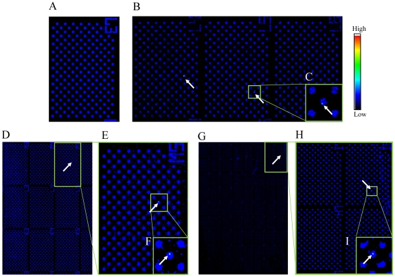 Detection of carcinoma cells among cultured T lymphoblastoid leukemia on a cell microarray chip. (A–I) Scanned images of leukocytes/carcinoma cells on a cell microarray chip obtained with the microarray scanner. (A) Negative control (no carcinoma cells). (B, D, G) Carcinoma cells (0.01, 0.001, and 0.0001%) were scanned in 3, 9, and 64 clusters, respectively, on the cell microarray chip. (C, E, F, H, I) Magnified views of the boxed regions. Color scale represents the intensity of fluorescent emission.