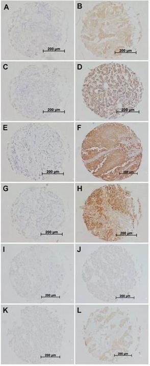 Representative examples of immunohistochemical stainings of primary breast cancer tissues for respectively no expression and high expression of MIC-AB (A: intensity 0 (negative); B: intensity 2 (intermediate)), ULBP-1 (C: intensity 0 (negative); D: intensity 2 (intermediate)), ULBP-2 (E: intensity 0 (negative); F: intensity 3 (strong)), ULBP-3 (G: intensity 0 (negative); H: intensity 3 (strong)), ULBP-4 (I: intensity 0 (negative); J: intensity 1 (weak)), and ULBP-5 (K: intensity 0 (negative); L: intensity 3 (strong)) in breast cancer . Immunohistochemistry was performed according to standard protocols as described in Materials and Methods.