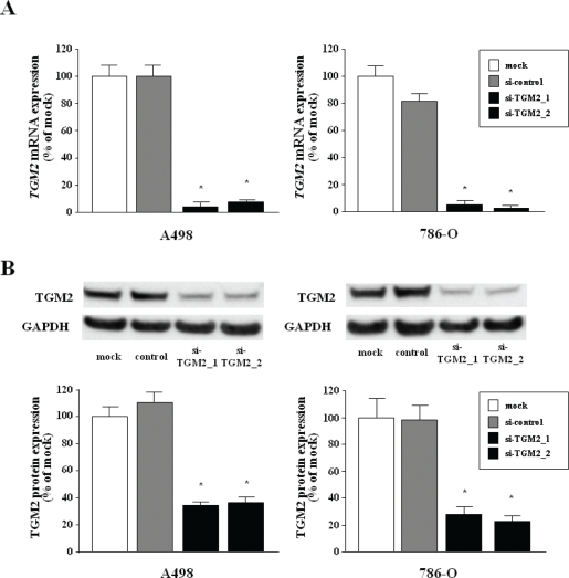 Silencing of TGM2 in two RCC cell lines by si- TGM2 (A) TGM2 mRNA expression after 24 hr of transfection with 10 nM si- TGM2 in RCC cell lines (A498 and 786-O). GUSB was used as an internal control. (B) TGM2 protein expression after 72 hr transfection with si- TGM2 . GAPDH was used a loading control. *P