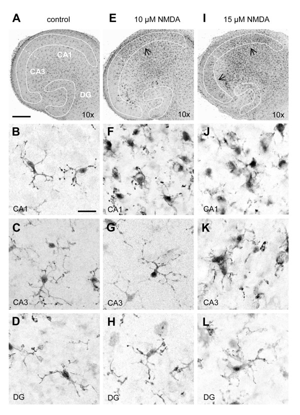 Microglial activation coincides with selective neuronal vulnerability towards excitotoxicity . Confocal images of microglia in control ( A - D ), 10 μM ( E - H ) and 15 μM ( I - L ) NMDA-treated slice cultures, as determined by Iba1-immuno-histochemistry. After 6 days in culture ( A ), microglia were evenly distributed throughout the slice cultures and displayed a typical ramified morphology ( B :CA1, C :CA3, D :DG). At 10 μM NMDA ( E ), changes in the CA1 region were clearly visible as numerous microglia accumulated at the site of injury ( E , arrow). Morphologically, these microglia displayed an