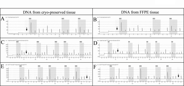 Pyrograms of the LINE-1, MLH1 and MGMT methylation markers for different couples of frozen/FFPE DNA . Pyrograms of LINE-1 marker are those obtained for couple n° 10 ( A and B ) and for MLH1 and MGMT markers those for couples n°13 ( C and D ) and n°6 ( E and F ) respectively. Arrows indicate positions of internal controls of conversion, demonstrating no residual cytosines at the non-CpG sites. Gray areas indicate polymorphisms, between T/C, generated by bisulfite treatment. Level of methylation for a given CpG dinucleotide is reported above it (gray square).